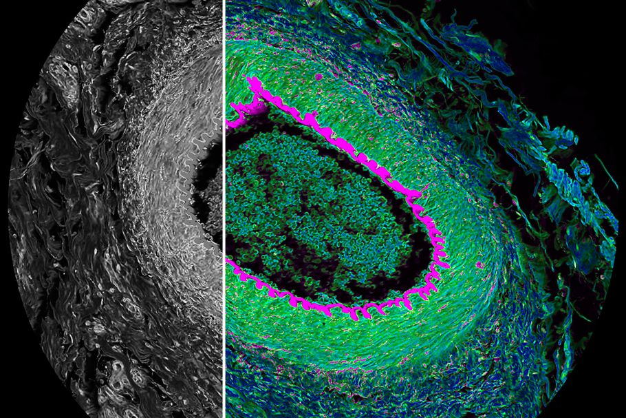 Histological section from cat eye. Simultaneous spectral (grey) and FLIM (color) confocal imaging reveals contrast by lifetime. Acquisition and visualization using Leica STELLARIS 8 FALCON and LAS X software. Courtesy Leica Microsystems